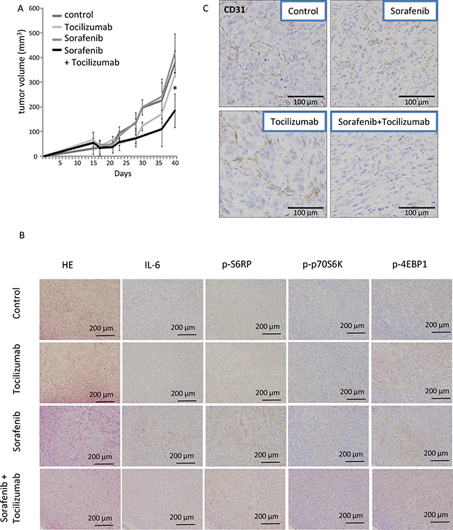 Effect of combination therapy with sorafenib and tocilizumab on a nude mice xenografts model of 786-O cells.