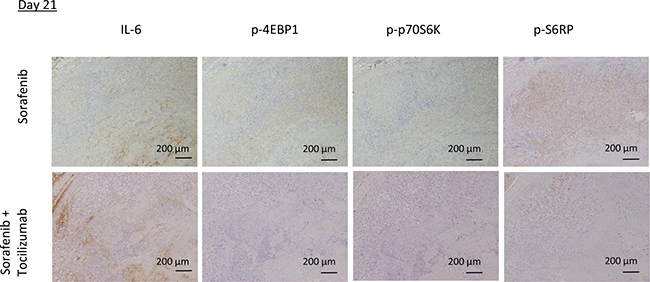 mTOR pathway activity in mouse tumor specimens after sorafenib treatment in combination with tocilizumab.