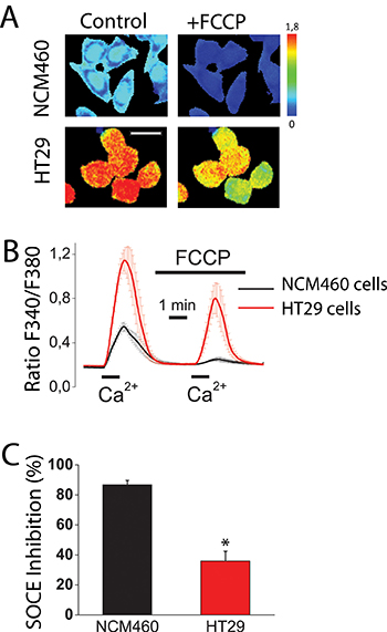 Mitochondria control store-operated Ca2+ entry (SOCE) in normal colonic cells and colon cancer cells.