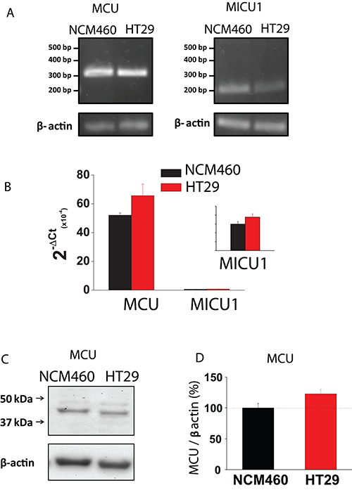 MCU and MICU1 expression levels are similar in NCM460 and HT29 cells.
