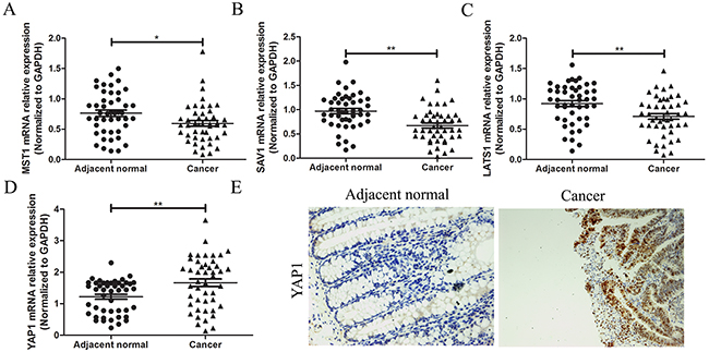 Expression measurement of the core factors of Hippo pathway in CRC.