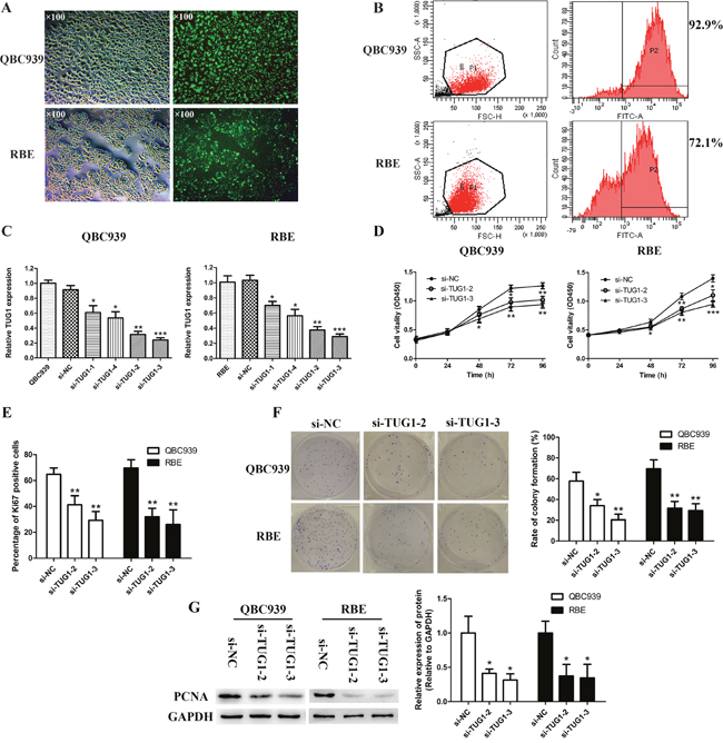 Transfection and knockdown efficiency of TUG1-specific siRNA and TUG1 depletion retarded cell proliferation and colony formation in CCA cells.