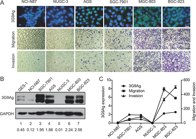 The expression of 3G9Ag is related to migration and invasion ability in GC cells.