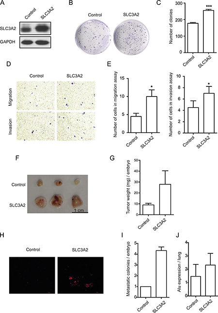 Overexpression of SLC3A2 promoted the migration and invasion in NCI-N87 cells.