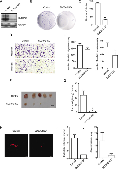 SLC3A2 deficiency suppressed the migration and invasion in BGC-823 cells.