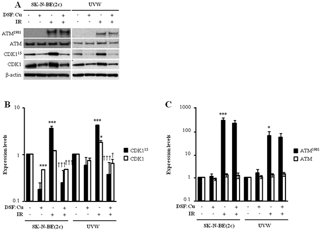 The effect of DSF:Cu on the phosphorylation of ATM and CDK1 induced by ionising radiation.