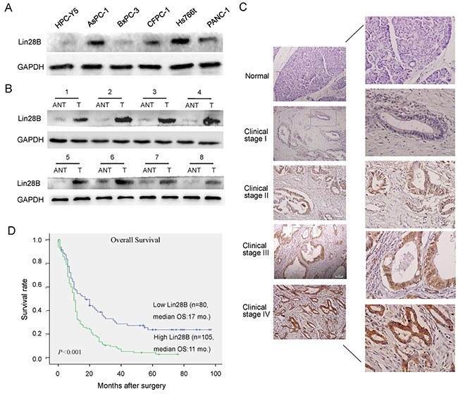 Lin28B expression is upregulated in PDAC cell lines and primary human PDAC tissues.