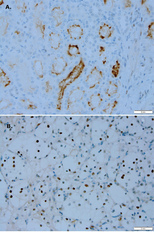 PIM1 kinase expression is different in RCC versus normal renal tissue.