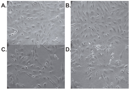 Abemaciclib causes morphologic changes in RCC cell lines.