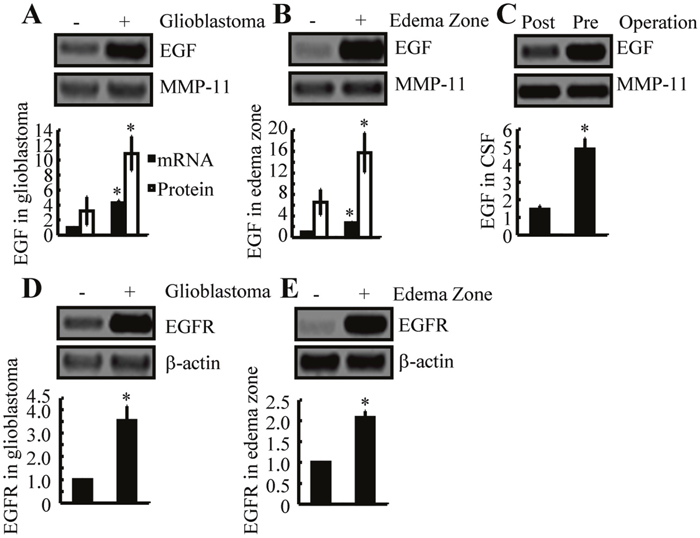 EGF and EGFR expression are increased in human GBM tissues and in the edema zone, relative to normal controls.
