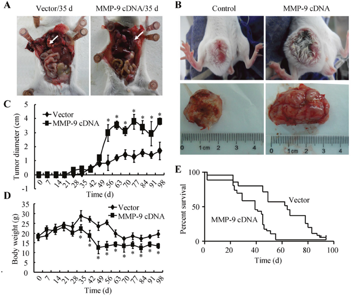 MMP-9 plays critical roles in triggering the metastasis of GBM.