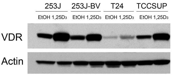 VDR expression in human bladder cancer cells.