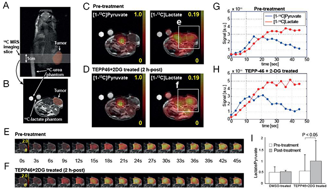 Acute metabolic responses of TEPP-46 and 2-DG combination treatment in subcutaneous tumor measured by hyperpolarized 13C MR spectroscopic imaging.