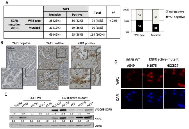 YAP1 expression correlated to EGFR mutation status.