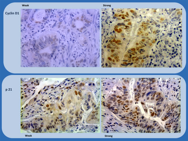 Immunohistochemistry study of biopsies (Cyclin D1 and p21) showing representative examples of weak and strong staining (x200 and x100).
