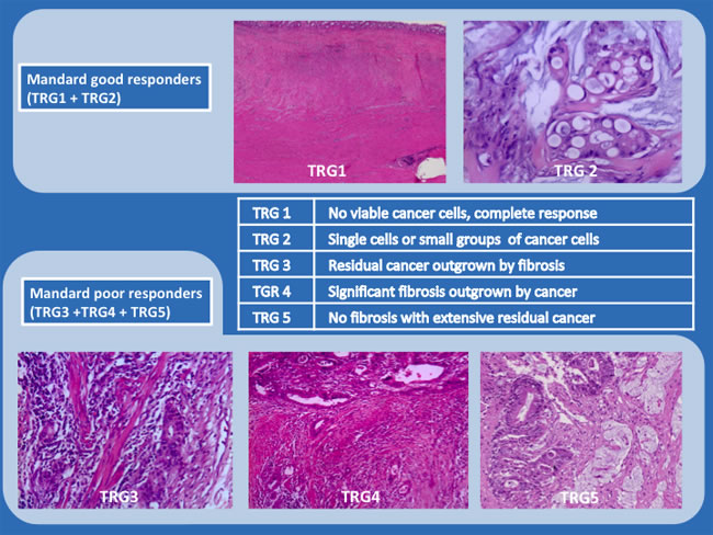 Mandard Tumor Regression Grade System (representative examples; hematoxylin and eosin (H&E) staining; x200 and x100).