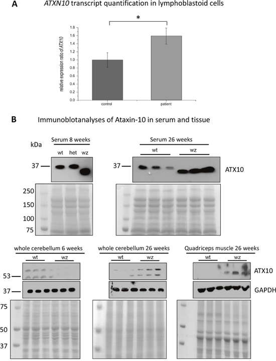 Further studies of ataxin-10 transcript and protein abundance.