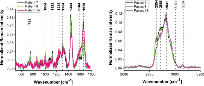 The average vibrational Raman spectra in the low and high frequency region for different areas of the low-grade brain tumor (astrocytoma, grade WHO I and II) (P7, P8, P14), Raman integration time for images 0.5 s for high frequency and 1s for low frequency region, resolution step: 1 μm, laser excitation power: 10m W.