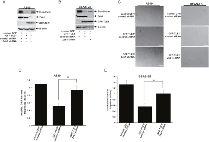 Oncotarget | TLE1 inhibits anoikis and promotes tumorigenicity in
