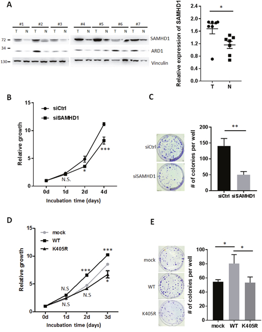 SAMHD1 acetylation is important for cell proliferation in various cancer cells.