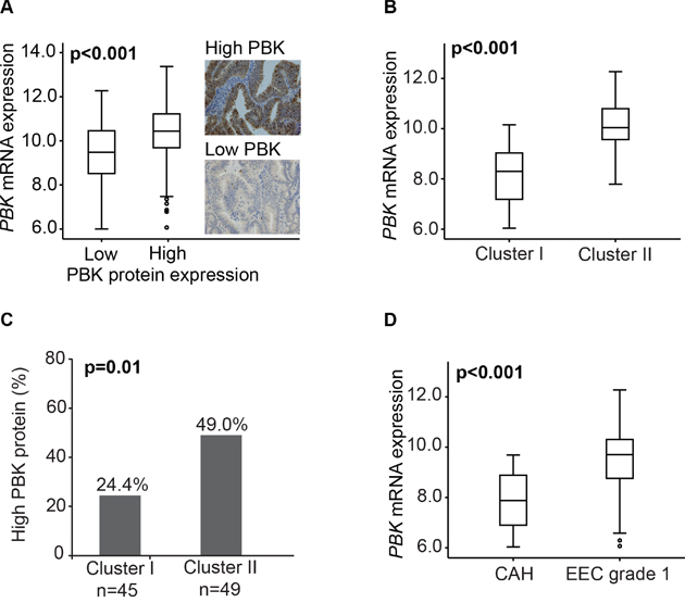 PBK mRNA and protein expression in premalignant and low grade endometrioid endometrial cancer lesions.