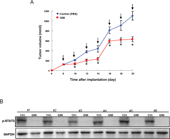 Therapeutic delivery of GMI in OCSC-transplanted mice attenuates tumor progression in vivo.