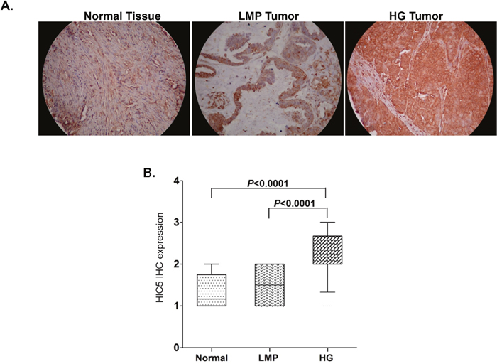 Analysis of Hic-5 expression in serous EOC tumors by IHC.