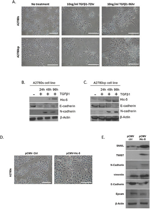 Effects of TGFβ1 treatment and Hic-5 ectopic expression on EMT modulation in EOC cells with epithelial phenotype.