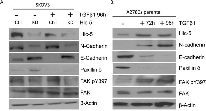 Effect of TGFβ1 treatment on Hic-5 knockdown and A2780s parental EOC cells.