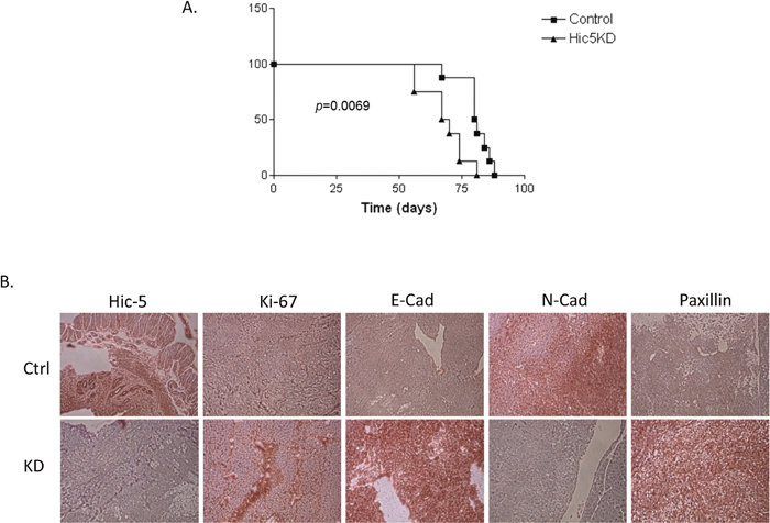 In vivo examination of the effect of Hic-5 knockdown in tumor formation and survival in immunodeficient (SCID) mice.