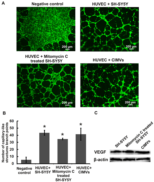 Evaluation of in vitro pro-angiogenic potential of mitotically inactivated cells and CIMVs SH-SY5Y.