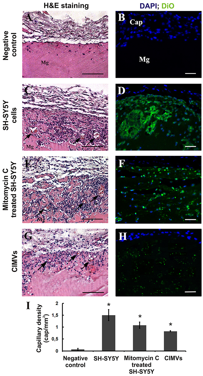 CIMVs stimulate angiogenesis in vivo.