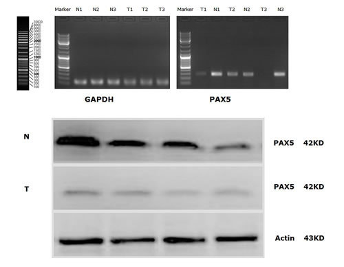 (A) PAX5 mRNA expression (RT-PCR) in GC tissues and in normal gastric mucosal tissues; (B) Western Blot analysis for PAX5 protein expression in GC tissues and in normal gastric mucosal tissues.