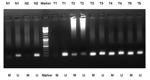 MSP detection of PAX5 promoter methylation in different GC tissues and normal gastric mucosal tissues.