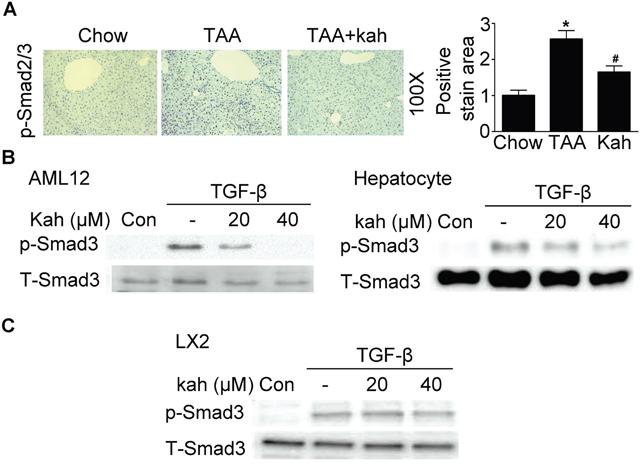 Effect of kahweol on Smad3 phosphorylation.