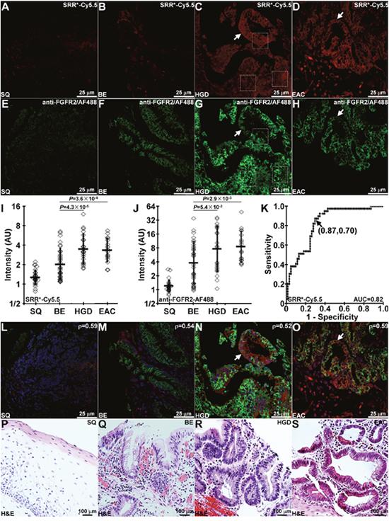 Binding of FGFR2 peptide to Barrett's neoplasia.