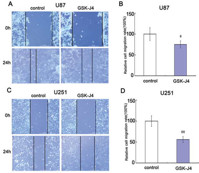 GSK-J4 inhibits cell migration of glioma cells.