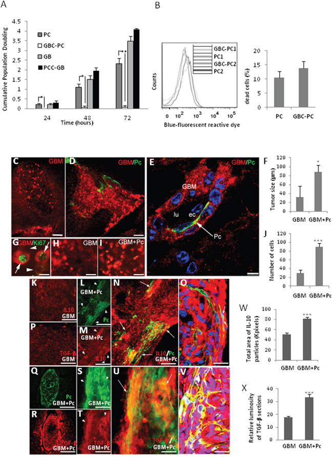 Pericytes interacting with GBM cells induce tumor growth.