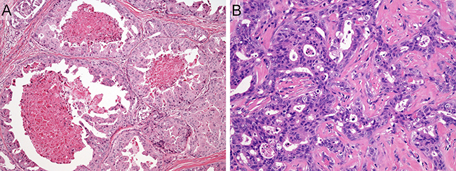 Representative histologic features of salivary duct carcinoma case.