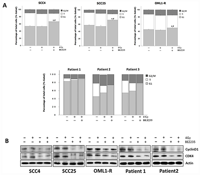Combination treatment with the dual PI3K/mTOR inhibitor and IR causes G1 cell cycle arrest in OSCC cells by regulating cell cycle-related proteins.