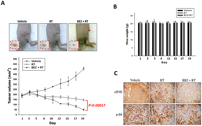 Treatment with a dual PI3K/mTOR inhibitor in combination with IR inhibits tumor growth of OML1-R xenografted tumor.