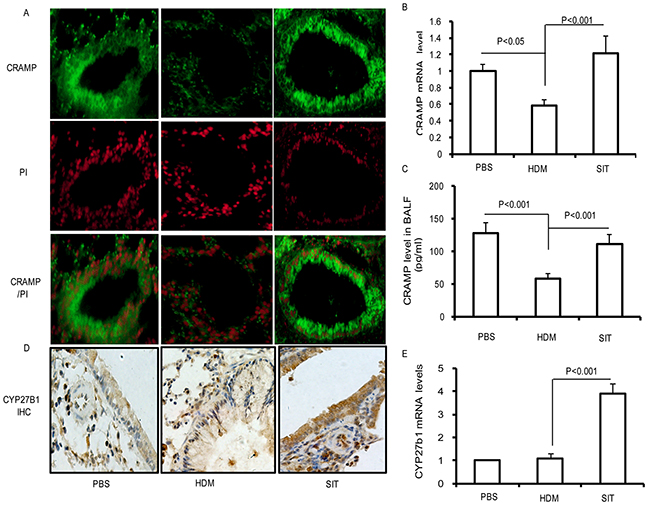 HDM-immunotherapy increases the expression of CRAMP and CYP27B1 in lung.