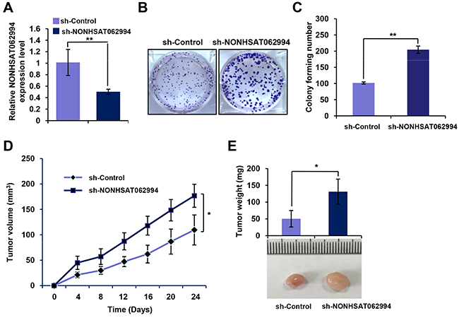 Knocking down NONHSAT062994 promotes CRC growth in vitro and in vivo.