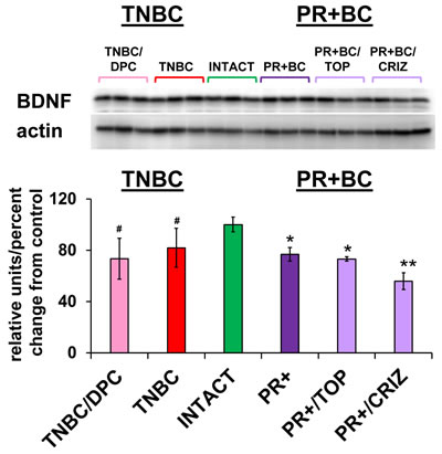 Levels of BDNF in the PFC tissues of intact and TNBC and PR+BC-bearing chemotherapy treated and untreated TumorGraft mice.