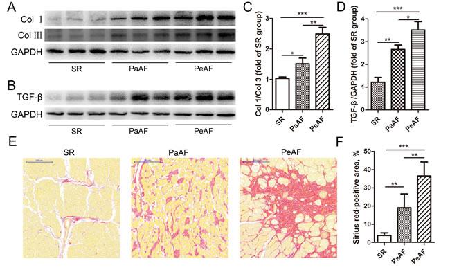 Up-regulation of atrial fibrosis in AF.
