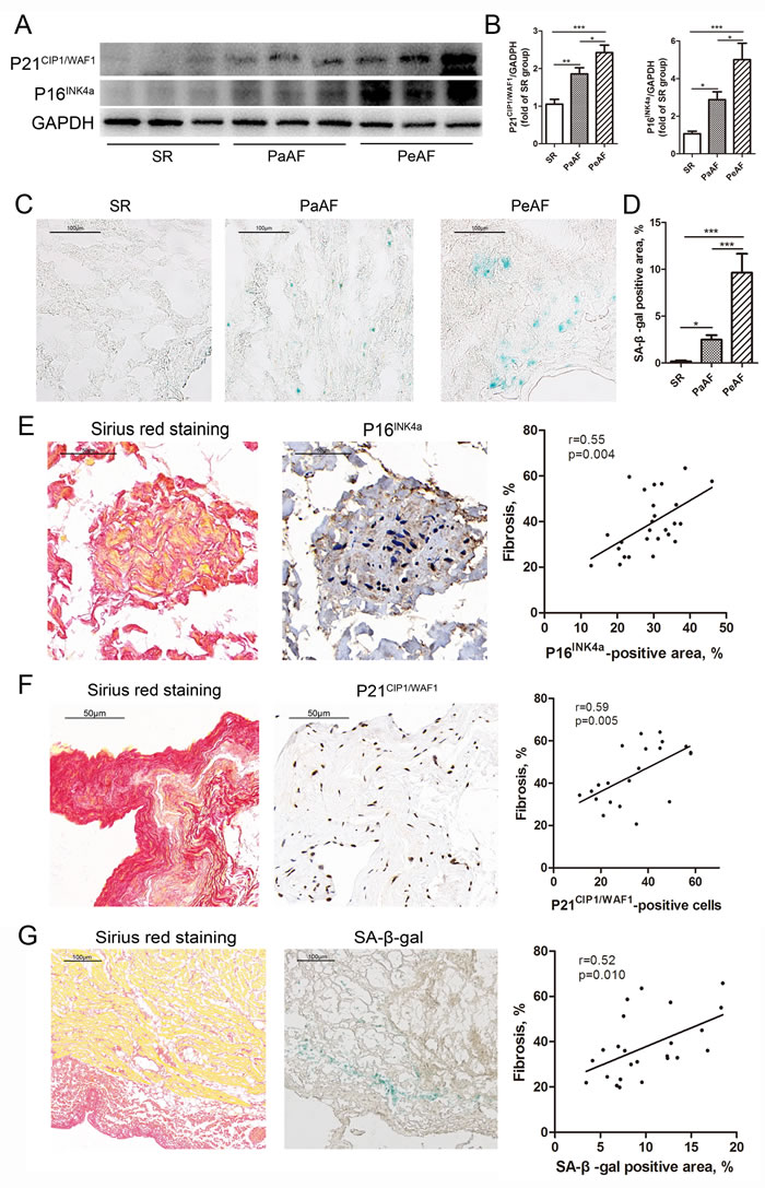 Accumulation of senescence accompanied by fibrosis in AF.
