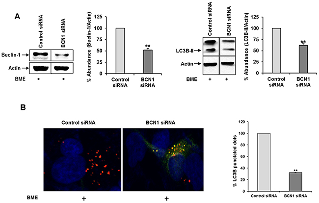 Knockdown of Beclin-1 suppresses BME induced autophagy in breast cancer cells.