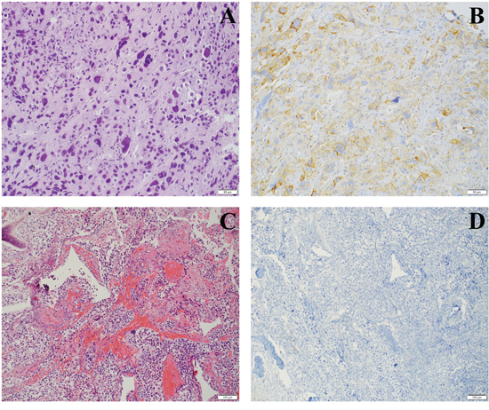 PD-L1 staining on TCs in metastatic sites.