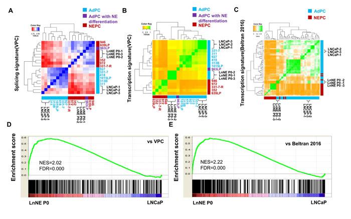 Comparison of RNA splicing and transcriptome of LnNE P0 cells with NEPC.