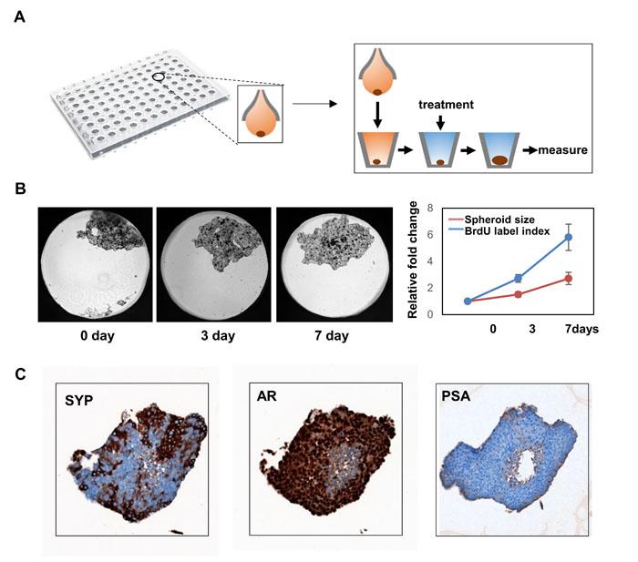 3-D culture of LnNE cells.